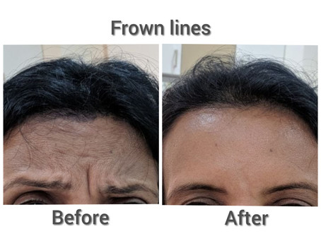 All you need to know about Botox treatment