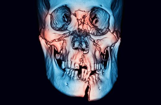 fraturados ossos da face em Guanambi - Cirurgia Bucomaxilofacial