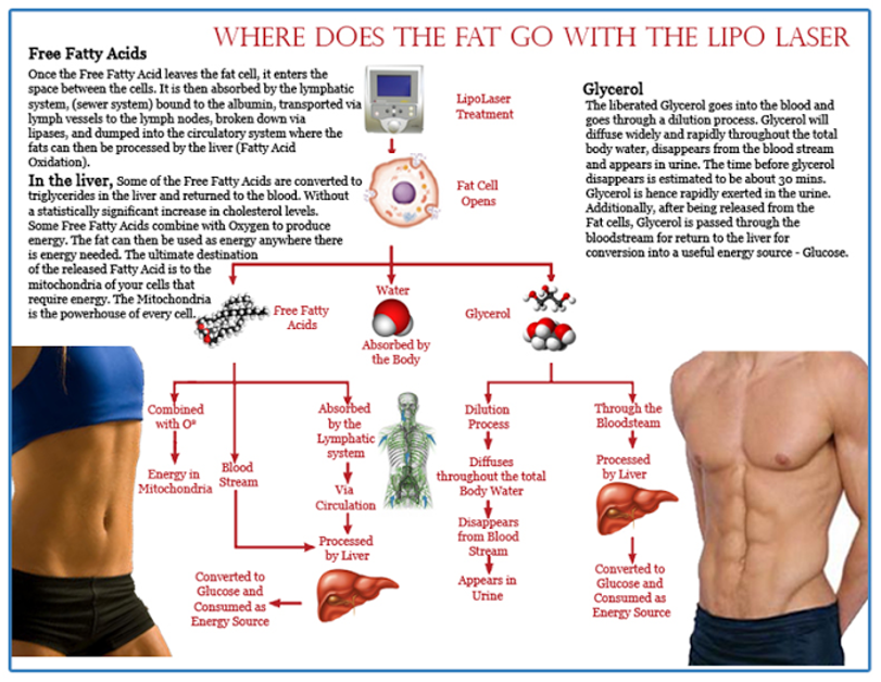 Lipo Laser Body Contouring, how it works for easy effective weight loss.