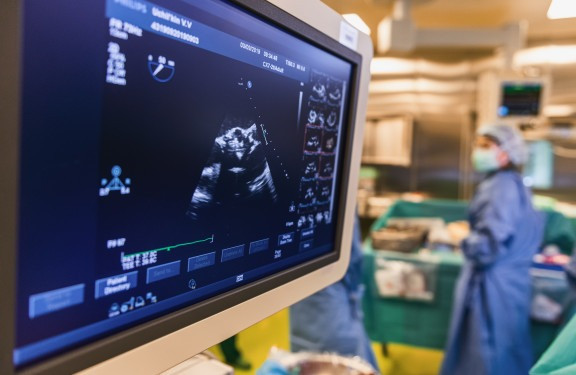 ultrasound-monitoring-heart-during-surge
