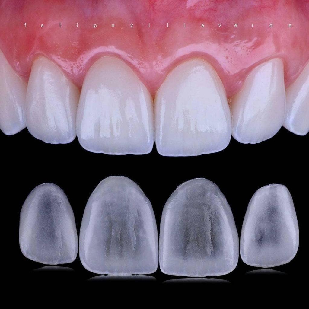 Реставрации зубов