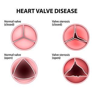 img_heart_disease_diagram_400.jpg