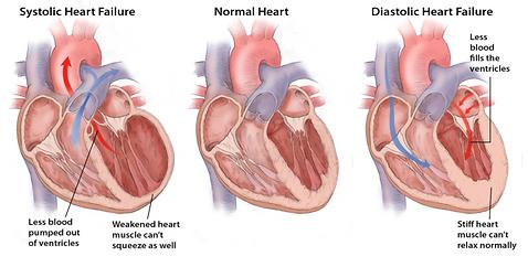 SystolicDiastolic_Heartfailure.551868564