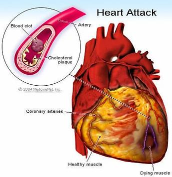 heart_attack.webp