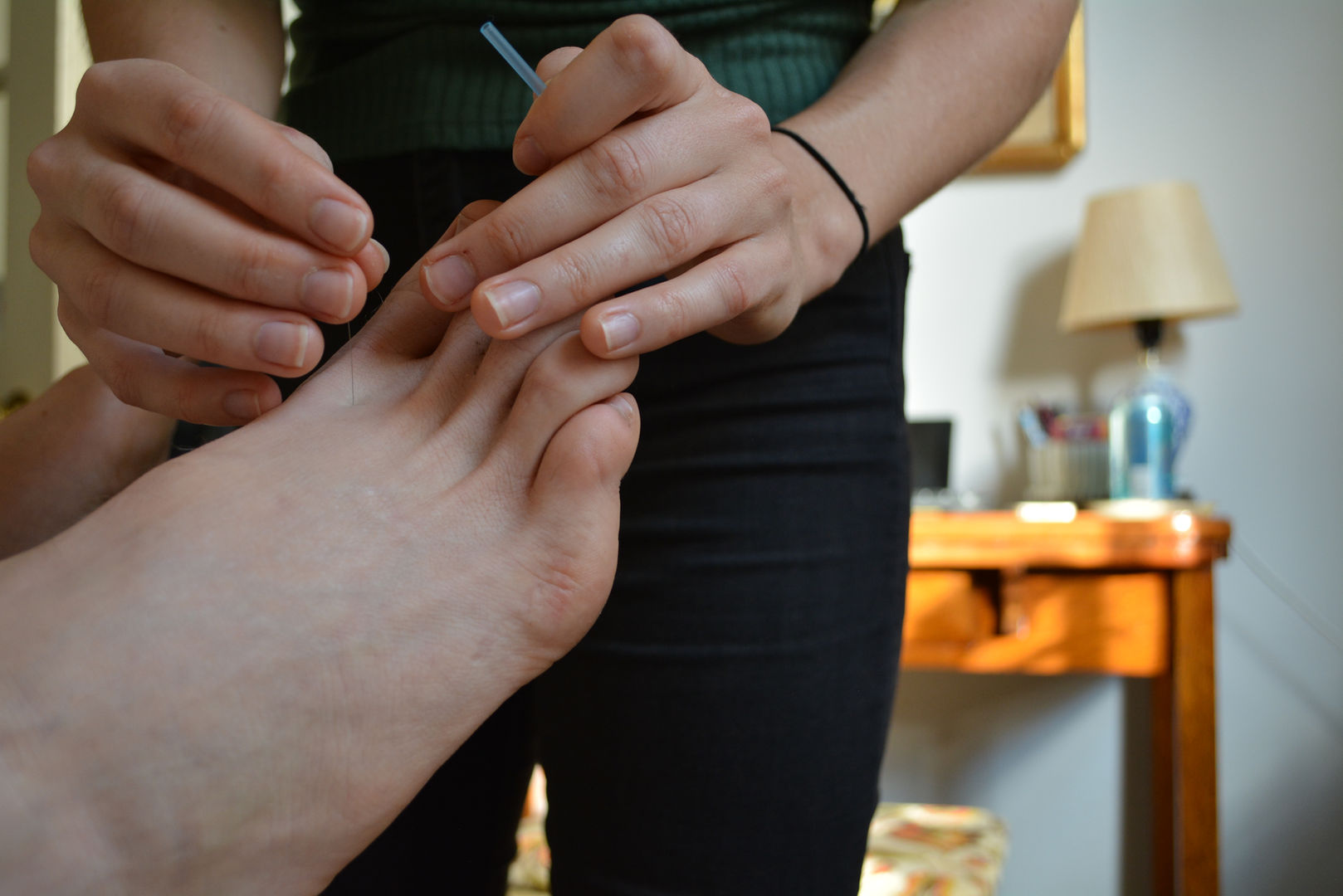 Hidden Root Acupuncture treatment