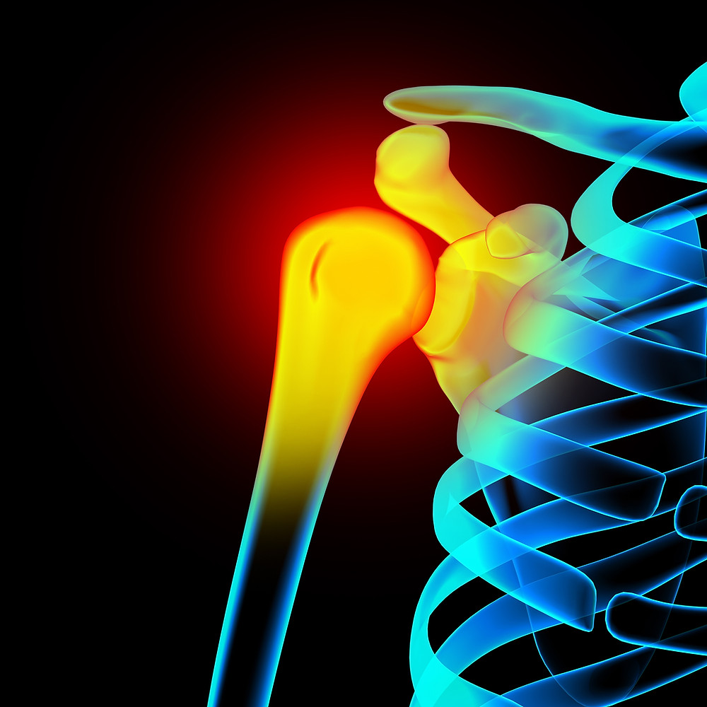 Subacromial impingement is a common cause of shoulder pain.