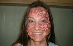 face bubbles