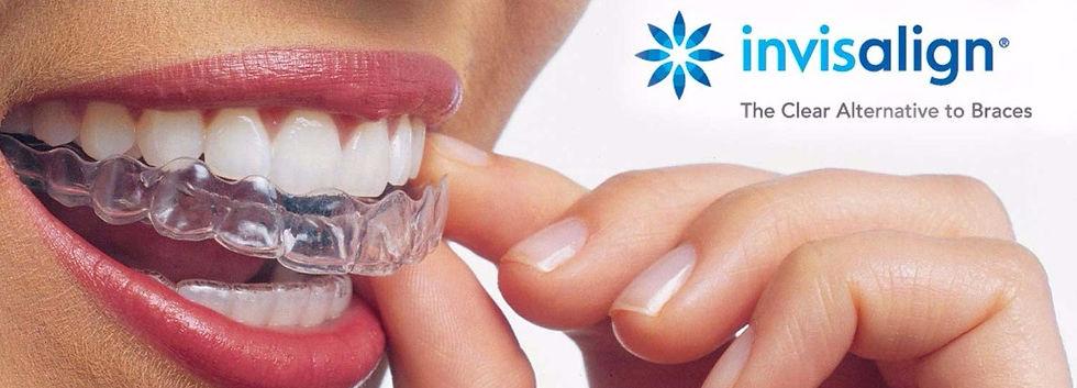 Invisalign at Essence Dental Aurora.  Your Aurora Dentist.