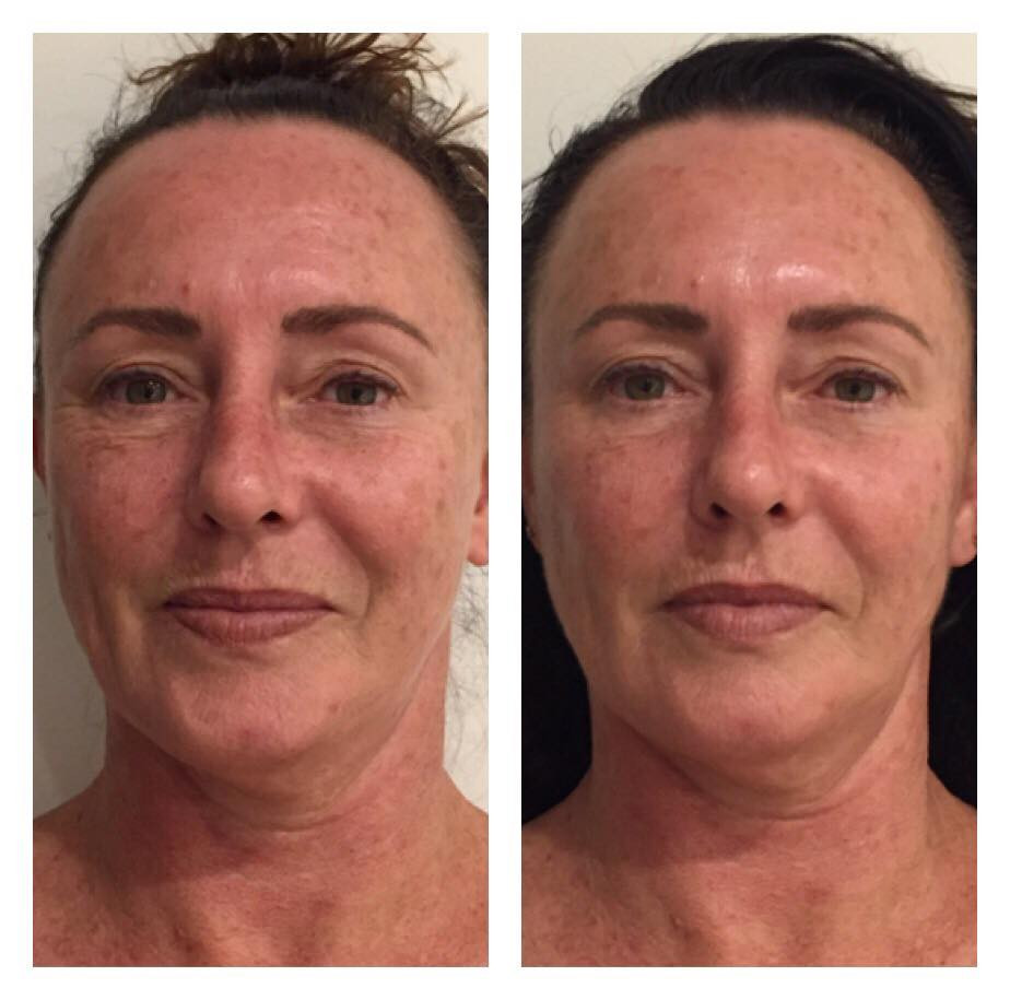 Cryoskin Facelift Skin Tightening Before After 7