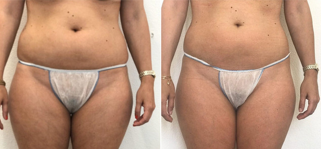 Body Ballancer Before After Tummy Hips