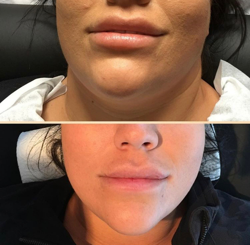 Cryoskin Chin Slimming Fat Freezing Before After 4