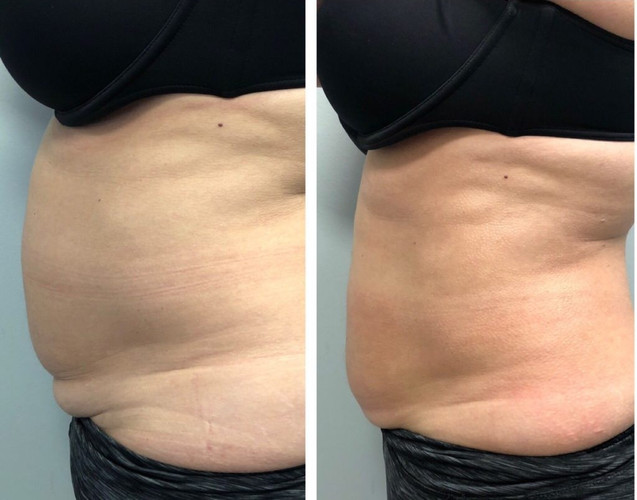 Cryoslimming Before After 2