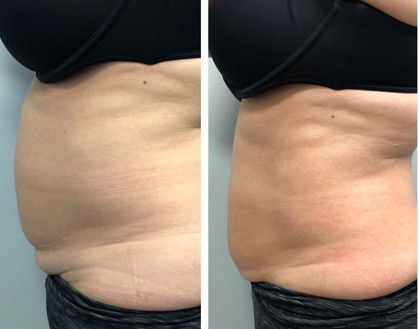 CryoSlimming Before After Fat Freezing & Tummy Tightening