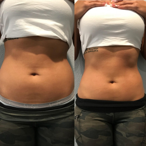 Cryoslimming Before After 1
