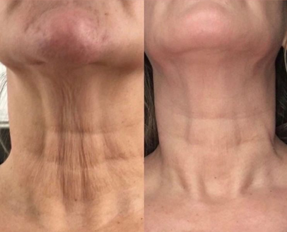 Cryoskin Facelift Skin Tightening Before After 6