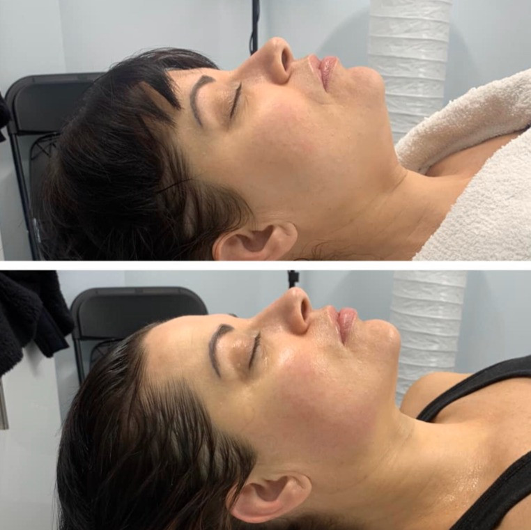 Cryoskin Chin Slimming Fat Freezing Before After 1
