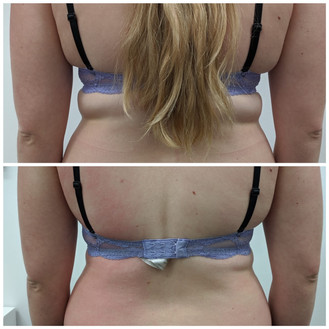 Cryoskin Fat Freezing Before After 8