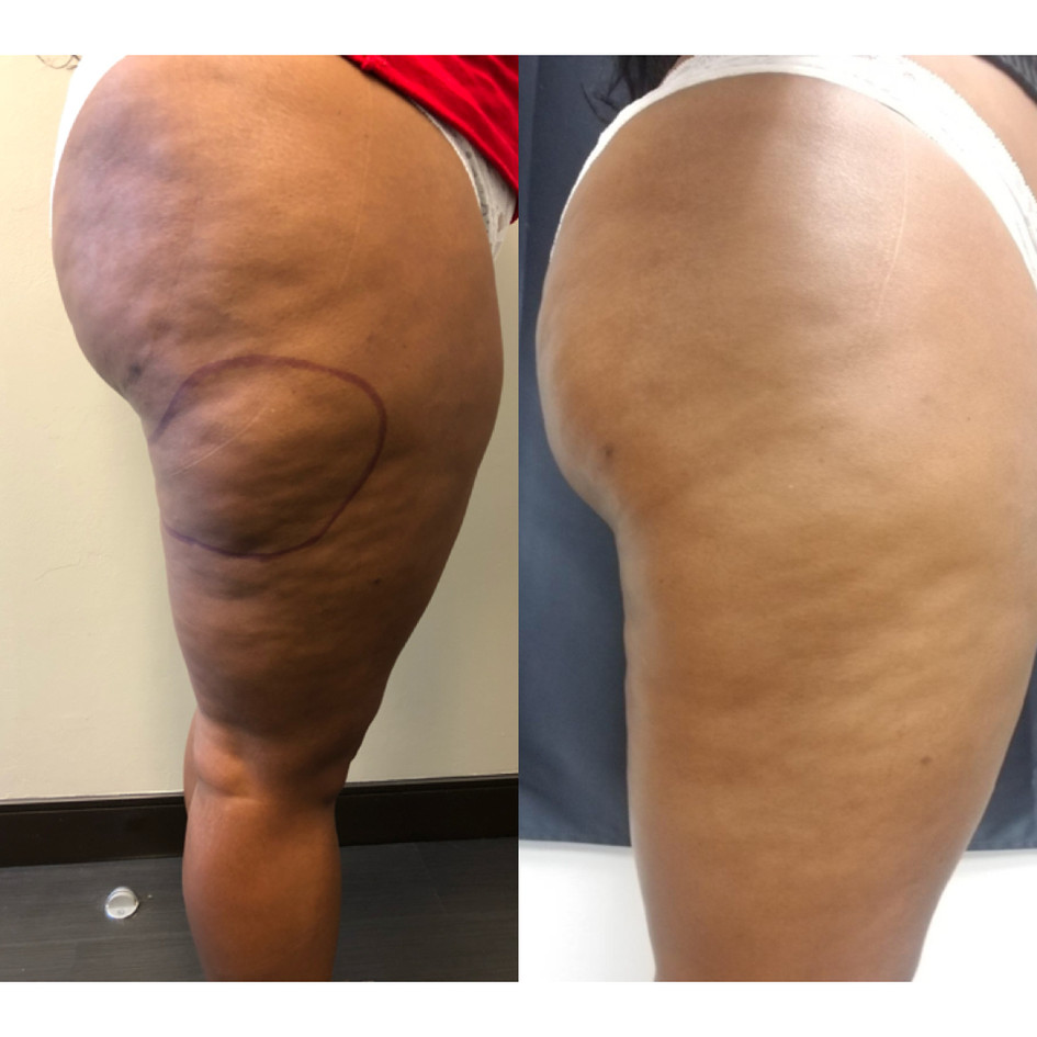 Cryoskin Before After Fat Freezing Thighs