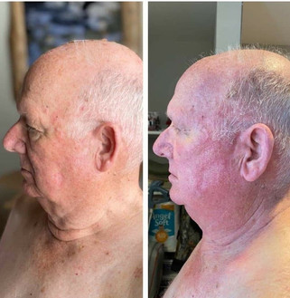 Cryoskin Chin Slimming Fat Freezing Before After 3