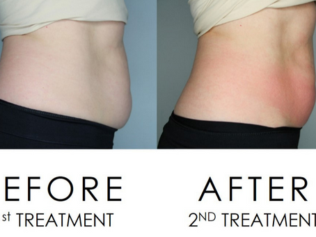 Fat Freezing at Cryoskin Australia - What to Expect
