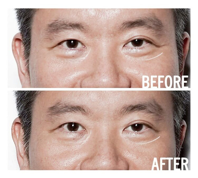 Access Energetic Facelift Before After