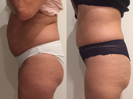 Cryoskin Fat Freezing Before After 12