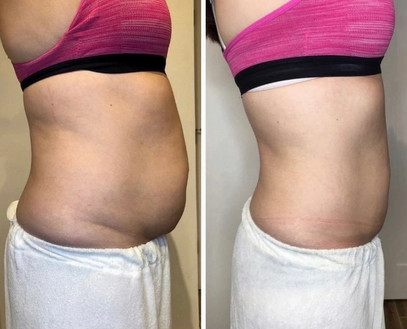 CryoSlimming Before/After