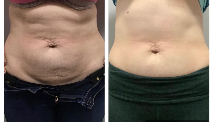Cryoskin Before After 3