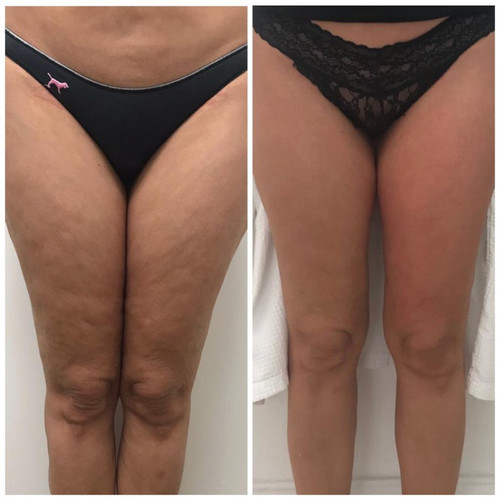 Cryoskin Fat Freezing Before After 11