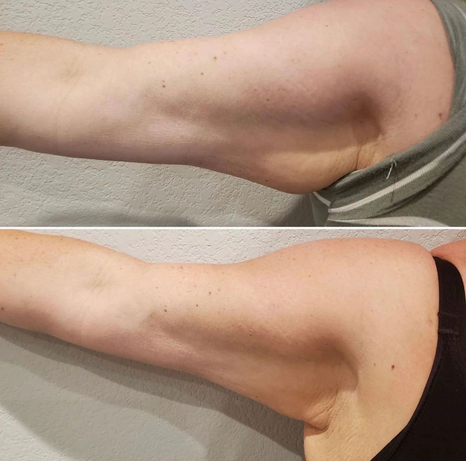 Arm Slimming