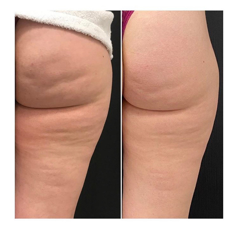 CryoSlimming Before After Fat Freezing and Cellulite Reduction on Thighs