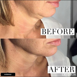 Cryoskin Chin Slimming Fat Freezing Before After 5