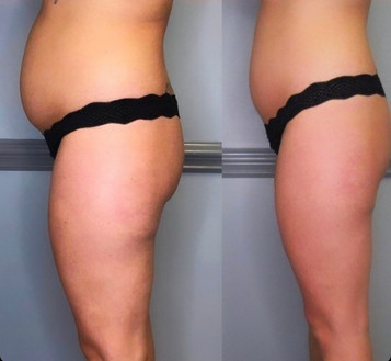 Cryoskin Fat Freezing Before After 10