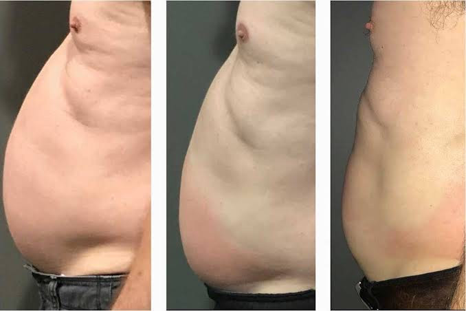 Cryoskin Before After 5
