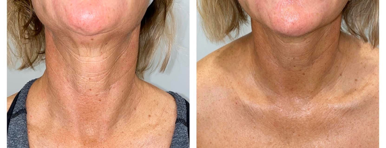 Cryoskin Facelift Skin Tightening Before After 1