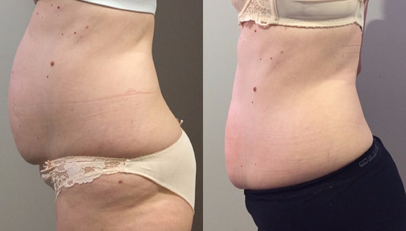 Cryoskin Fat Freezing Before After 7
