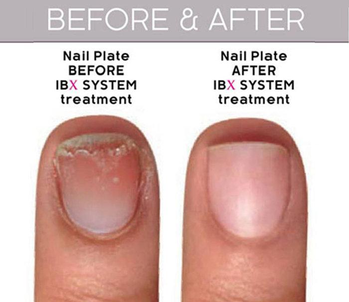 IBX Nail Repair System