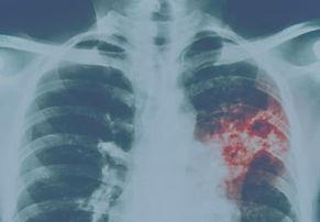 tuberculose.jpg
