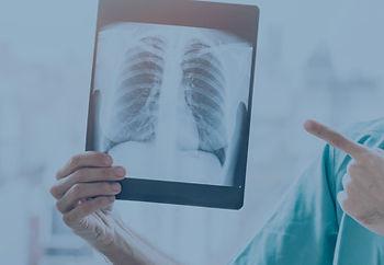 nodulo pulmonar.jpg