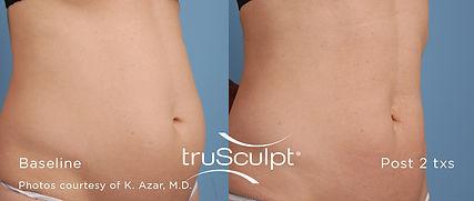 truSculpt_Body_1.jpg