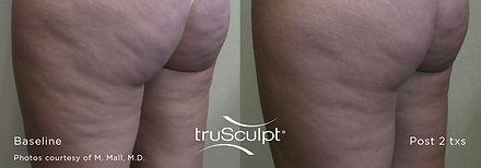 truSculpt_Cellulite_1.jpg