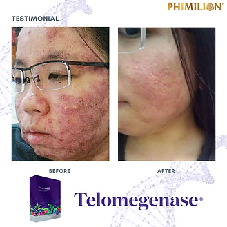 Telomegenase_Testimonial_Review_Skin condition solution, blemish, cell therapy