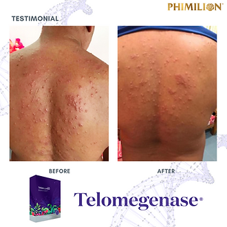 skin condition_cell therapy_telomere_testimonial_reviews_telomegenase