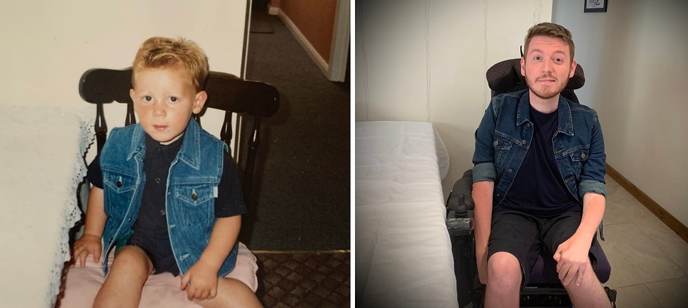 Side by side image of Ross as a child and Ross now. Sat on a kitchen chair wearing a denim jacket, poking his knee