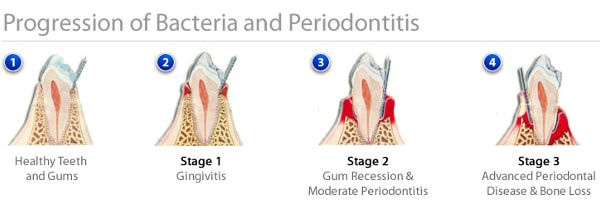 progression_of_periodontal_disease.jpeg