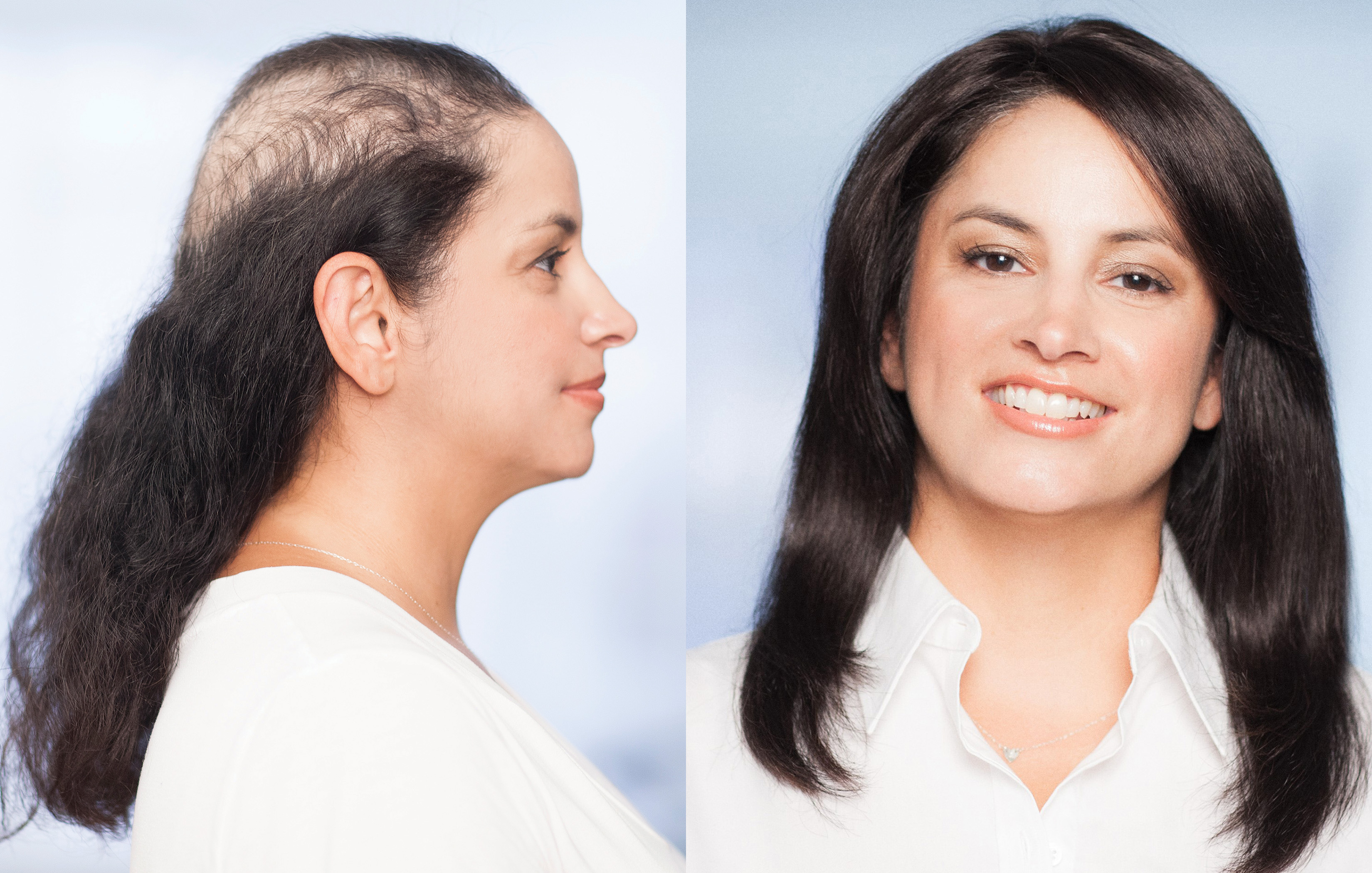 Non-Surgical Hair Replacement