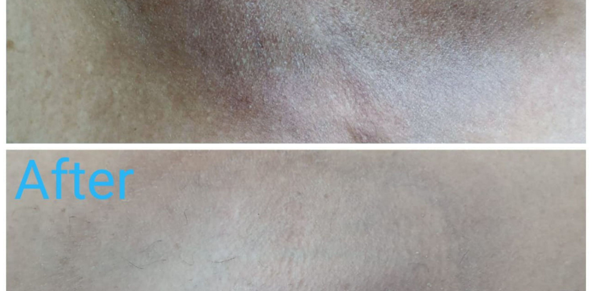 underarms whitening