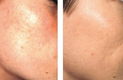 scars treatment in dubai