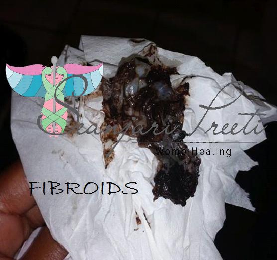 Shrink Fibroids | Vaginal Discharge