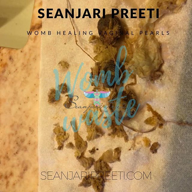 "<img src=""https://www.seanjaripreeti.com"" alt=""yoni pearl discharge"" >"